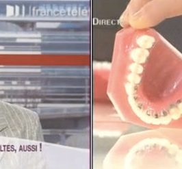 Appareil dentaire lingual/Invisalign ? L'orthodontie adulte sur France 2