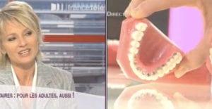 orthodontie adulte sur France2