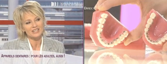 orthodontie adulte sur France2