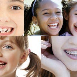 L'orthodontie chez l'enfant : à quel âge ?