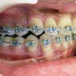 orthodontie mâchoire du haut en avant