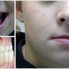 Prognathe, rétrognathe… que peut faire l'orthodontie ?