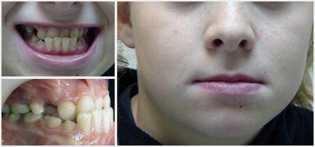 prognathe, rétrognathe, que peut faire l'orthodontie?