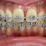traitement orthodontique mâchoire du haut en avant