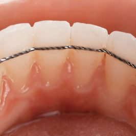 A quoi sert la contention en orthodontie ?