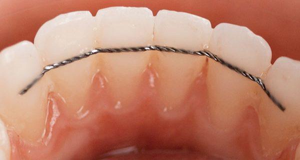 A quoi sert la contention en orthodontie ?