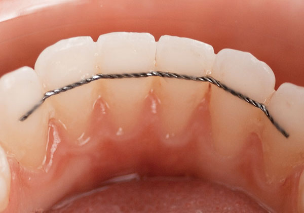 la contention en orthodontie