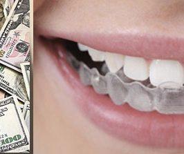 Les tarifs en orthodontie ? Abordons ce thème !