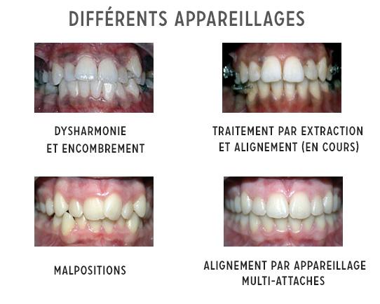 Différents appareillages orthodontiques