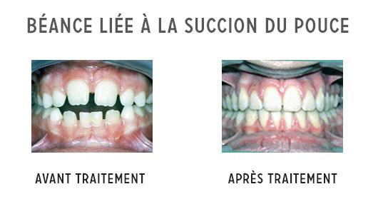 les objectifs d u2019un traitement orthodontique l u2019orthodontie