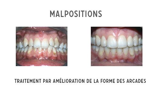 malpositions sur un adulte et traitement orthodontique