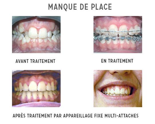 manque de place et traitement orthodontique