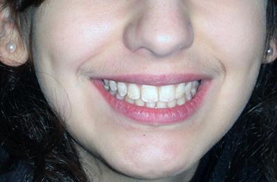 sourire après traitement jeune femme