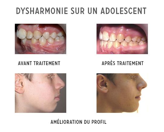 amélioration du profil d'un adolescent-orthodontie