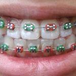 appareil dentaire chez l'enfant avec des élastiques de couleur