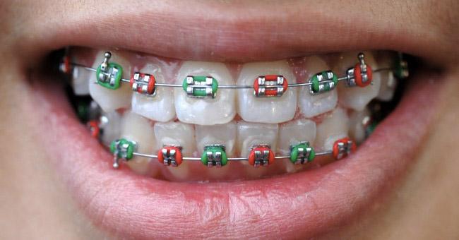 appareil dentaire enfant elastiques couleur