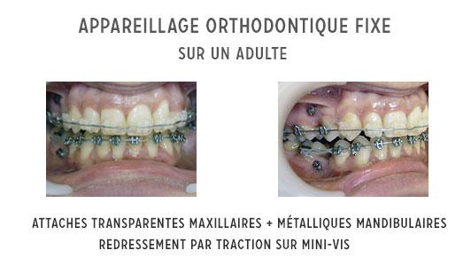 appareillage orthodontique fixe sur un adulte