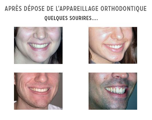 après dépose appareil orthodontique