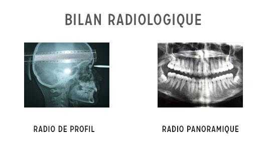 bilan orthodontique