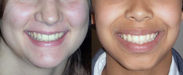 enfant sourire après orthodontie