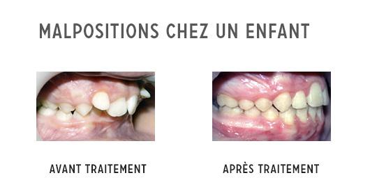 malpositions dentaires enfant