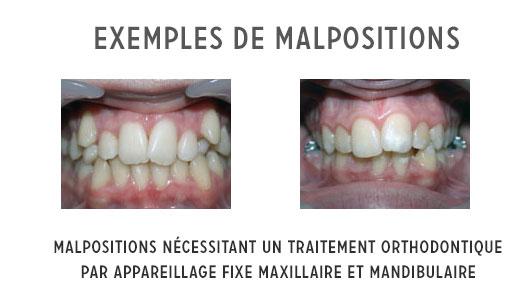 malpositions et traitement orthodontique