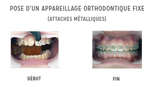pose d'un appareil orthodontique fixe
