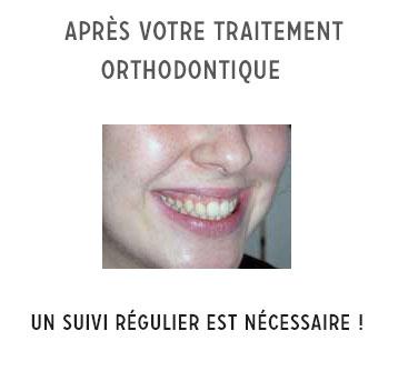 suivi après traitement orthodontique