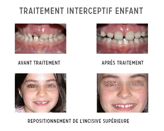 traitement interceptif enfant