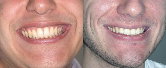 adulte sourire après orthodontie