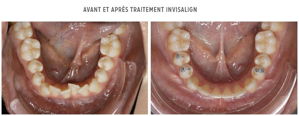 avant/après Invisalign - mandibule
