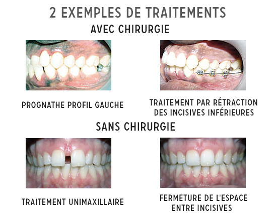 2 exemples de traitements d'orthodontie