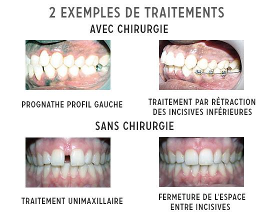 2 exemples de traitements d'orthodontie