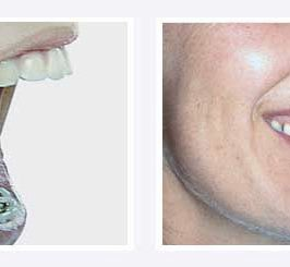 Orthodontiste à Paris, le Docteur Lellouche nous présente sa vision de l'orthodontie