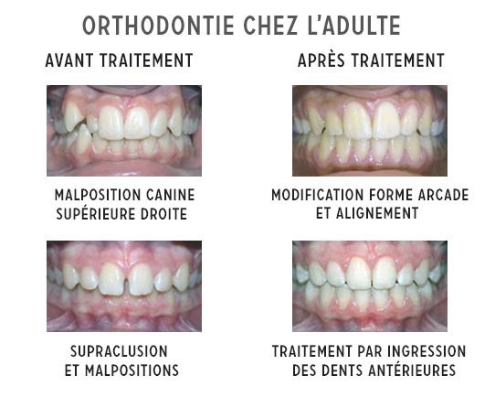 l'orthodontie chez l'adulte