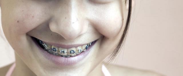 orthodontie sur une jeune fille