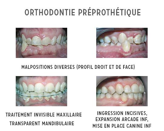 orthodontie préprothétique