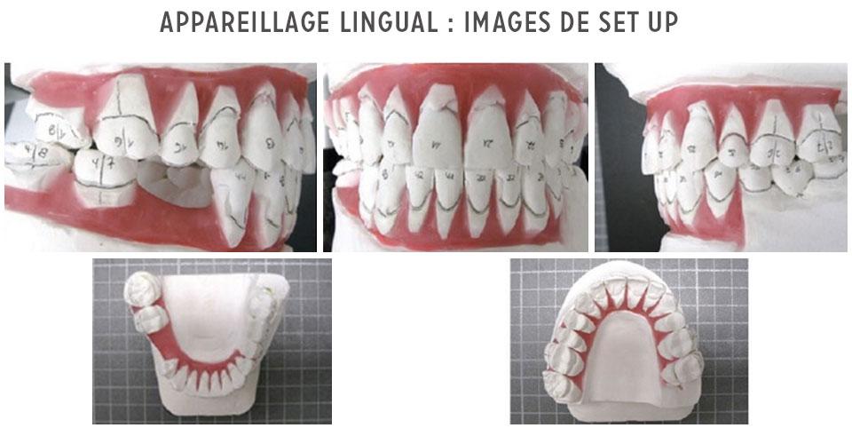 appareil lingual setup