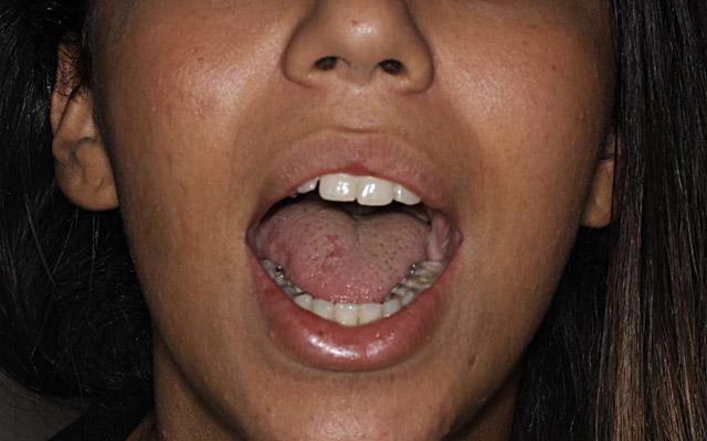 attaches linguales arcade dentaire inférieure