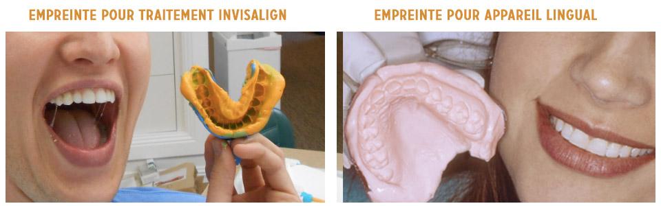 empreintes dentaires pour appareil lingual et invisalign