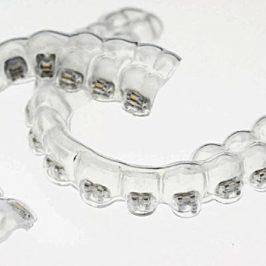 Un appareil en Invisalign ? En lingual ? Explications et choix du traitement orthodontique approprié