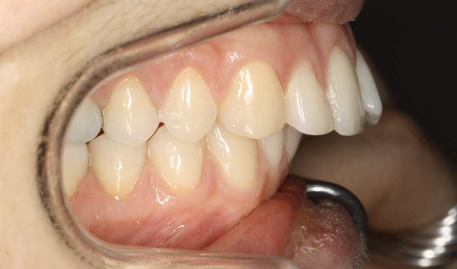 patiente avant traitement orthodontique