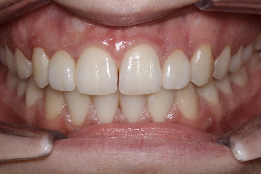 après orthodontie prothétique