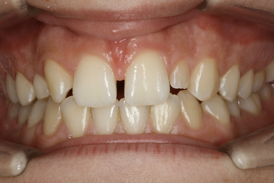 avant orthodontie prothétique