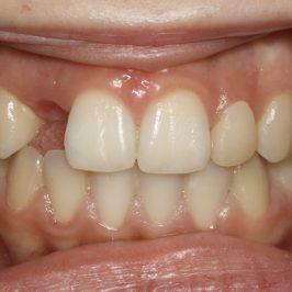 Orthodontie préprothétique : étude de cas avant implant