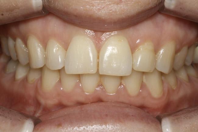 après chirurgie et orthodontie