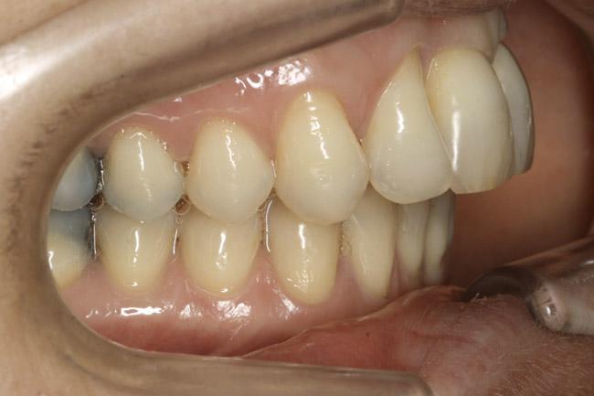 décalage des mâchoires - après orthodontie