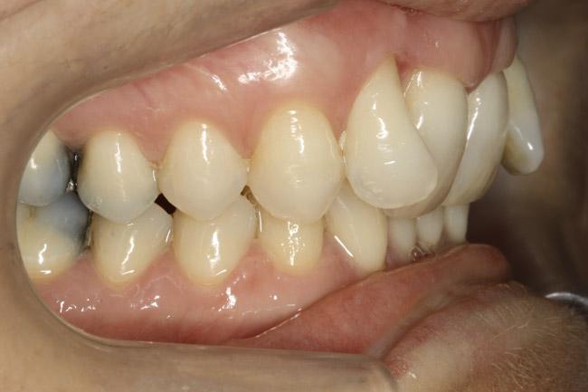 décalage entre les mâchoires - avant orthodontie