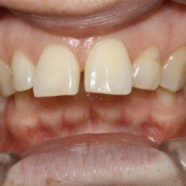 Décalage entre mâchoire inférieure et supérieure : 2 cas traités différemment en orthodontie