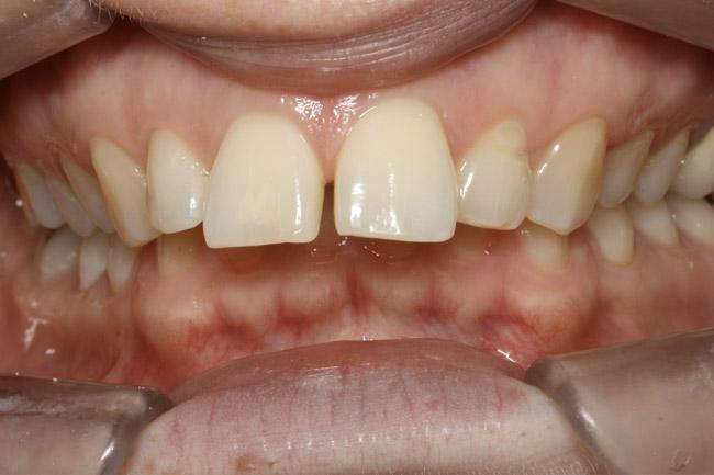 dents du haut en avant